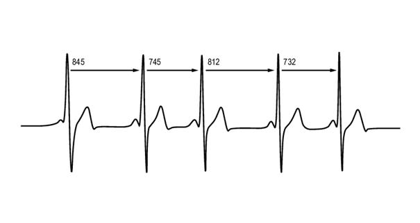 variabilité fréquence cardiaque
