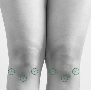 Auto-massage des genoux